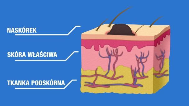 Co to jest czerniak_CodziennikKosmetyczny.pl