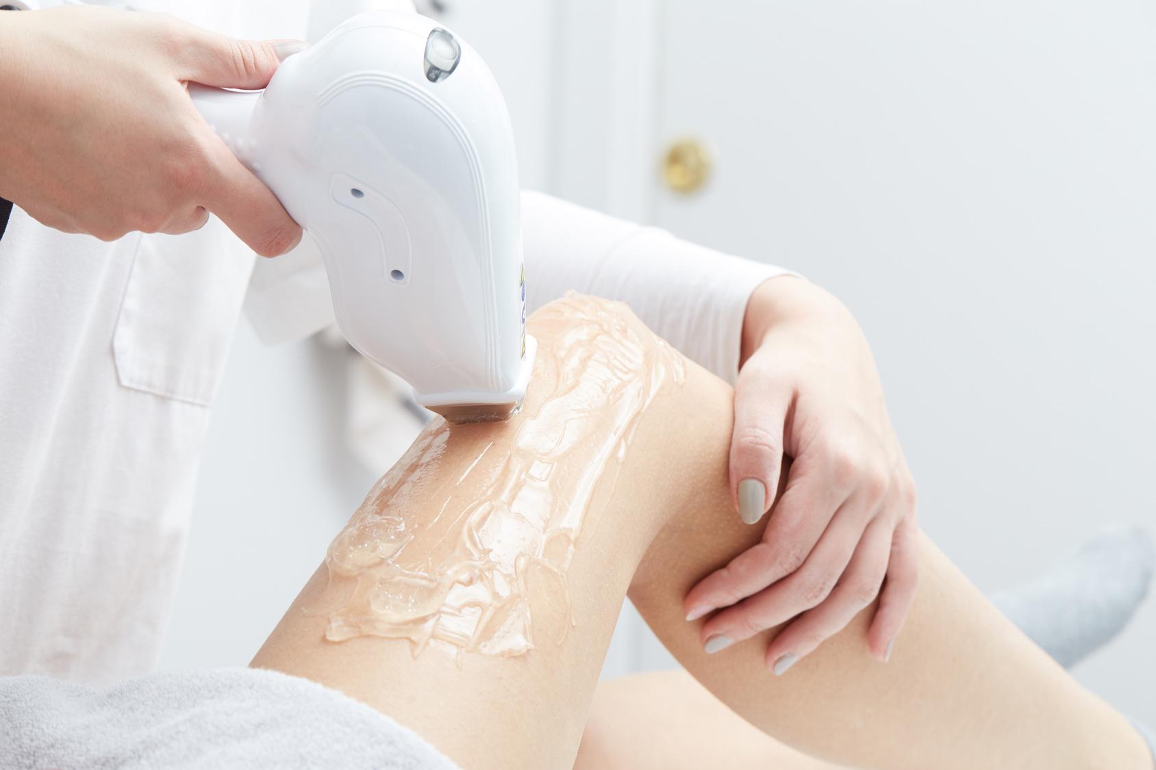 zabiegi na wakacje - depilacja laserowa - codziennik kosmetyczny