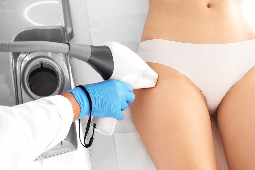 delipacja laserowa strefy bikini_Codziennik Kosmetyczny