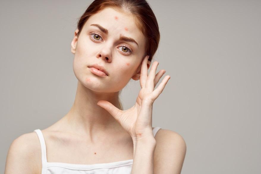 Trądzik różowaty-przyczyny-objawy-CodziennikKosmetyczny